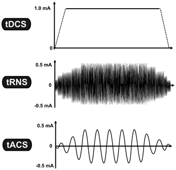 tDCS (Transcranial Direct Current Stimulation) versus tACS (transcranial alternating current stimulation) versus tRNS (transcranial random noise stimulation) at NeuroField Neurotherapy, Inc.