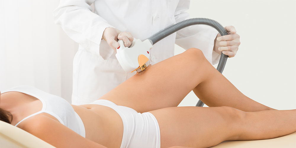 Leg Laser Hair Removal at Revive Med Spa & Wellness